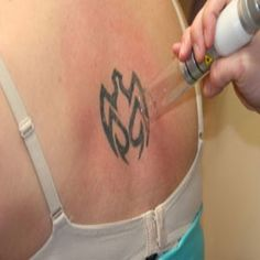 Important Facts About Laser Tattoo Removal. Good to read before I get my stars … Important Facts About Laser Tattoo Removal. Good to read before I get my stars removed. Latest Tattoos, New Tattoos, Cool Tattoos, Permanent Tattoo, Temporary Tattoo, Tattoo Removal Process, Laser Removal, Ink Removal, Island Tattoo