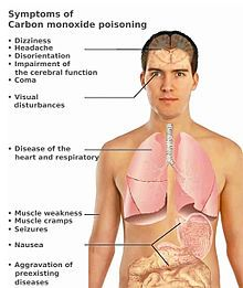 Carbon monoxide poisoning - Wikipedia