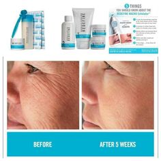 If you are interested in trying the products, look me up on Facebook at Rodan + Fields - Greensboro or go to my website at ksmith465.myrandf.com.