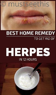 Best Home Remedy To Get Rid Of Herpes In 12 Hours,,,