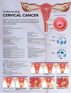 Understanding Cervical Cancer anatomy poster defines cervical cancer and lists risk factors, such as human papillomavirus (HPV).