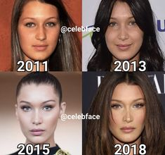 With the increase of and eating disorders, much of it brought on by social media, accounts like CelebFace could actually help those suffering with self-esteem issues. Today on aesthetic aesthetic surgery job job before and after remodelling Kendall Jenner Plastic Surgery, Celebrity Plastic Surgery, Kylie Jenner Nose Job, Kendall Jenner Makeup, Bella Hadid Nose, Bella Hadid Hair, Bella Hadid Makeup, Bella Hadid Surgery, Botox Brow Lift