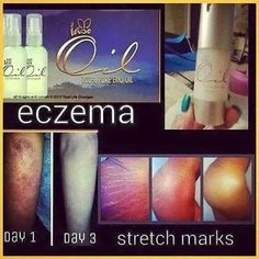 Emu oil is the answer $29.95 www.totallifechanges.com/4051451 and email me at totalhealthqueen@gmail.com or call 252-558-6408