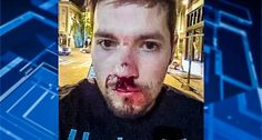 Gay couple beaten by homophobes at Seattle Pride celebration faces thousands in medical bills