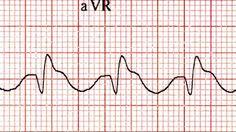 Life in the Fast Lane Ekg Interpretation, Emergency Medicine, Critical Care, Cardio, Blog, Life, Blogging, Cardio Workouts