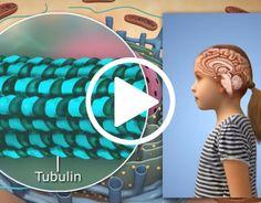 Moleculera Labs is an Autoimmune Neurobiology Testing Company