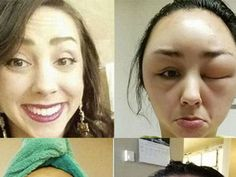 Can You Guess What Beauty Product Caused This Woman's 'Allergic Transformation'?