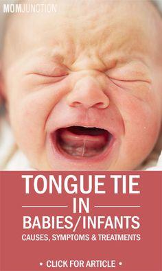 Tongue Tie In Babies/Infants - Causes, Symptoms & Treatments