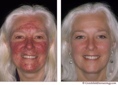 Tips on how to manage rosacea skin problems.
