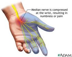 Nerve involvement in Sjogren's Syndrome (SS) an autoimmune disease