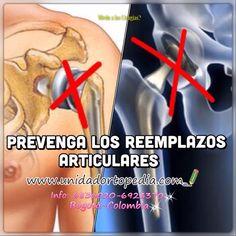 Prevenga los Reemplazos Protesicos en las articulaciones  PBX: 6923370
