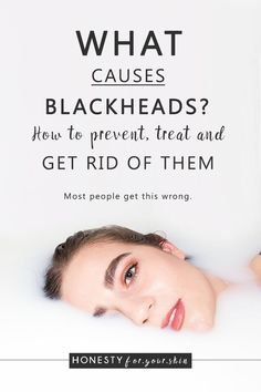 What Causes Blackheads? How to prevent, treat and remove… Are you ready for this? What causes blackheads? How to prevent blackheads and is it okay to squeeze blackheads? Come learn all my skin savvy in the making… How To Prevent Blackheads, What Causes Blackheads, Blackheads On Nose, Natural Remedies For Anxiety, Natural Cures, Natural Skin, Natural Health, Natural Vitamins, Beauty