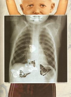 Art using x-ray images: Stian Hole How I'm currently feeling. Photomontage, Album Jeunesse, Lectures, Idioms, Heart Art, Collage Art, Make Me Smile, Childrens Books, Illustrators