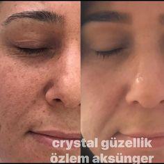 Leke tedavisi#gözeneksıkılaştırma #ciltbakımı #kırışıklıktedavisi #ciltbakimi #sıkılaşma #hydrafacial #babyface #crystalgüzellik