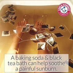 Baking Soda Black Tea bath can help soothe a painful sunburn Natural Wart Remedies, Sunburn Remedies, Cellulite Remedies, Health Remedies, Home Remedies, Sunburn Relief, Homeopathy, Diy Beauty, Health And Beauty