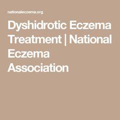 Dyshidrotic Eczema Treatment | National Eczema Association