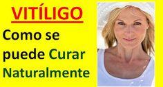 Vitiligo Tratamiento Natural: Nuevo Remedio Casero Para El Vitiligo en la Piel c… – Natural Vitiligo Treatment Natural Treatments, Natural Remedies, Psoriasis Symptoms, Vitiligo Treatment, Skin Grafting, Tattoo Skin, Medical Journals, Normal Skin