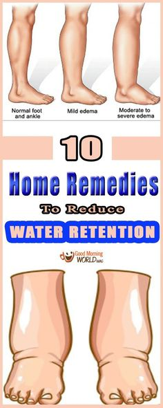 Watch This Video Enduring Reduce Water Retention With This Natural Remedy Ideas. Darling Reduce Water Retention With This Natural Remedy Ideas. Health And Fitness Magazine, Health And Fitness Tips, Health And Wellness, Wellness Tips, Good Health Tips, Health Advice, Healthy Tips, Healthy Habits, Healthy Foods