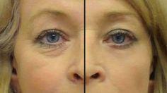 Elle mélange ces 2 ingrédients et l'applique autour de ses yeux … Ce sérum naturel a fait disparaître toutes les rides de son visage ! (RECETTE)