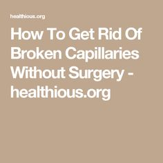 How To Get Rid Of Broken Capillaries Without Surgery - healthious.org