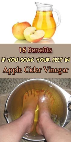 Apple cider vinegar is a miracle ingredient with many benefits, that every woman has in her kitchen. Find out what happens when you soak your feet in it. Cough Remedies, Health Remedies, Home Remedies, Herbal Remedies, Natural Toner, Natural Cures, Natural Health, Natural Life, Natural Skin