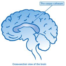c-acc is complete agenisis of the corpus callosum. This congenital brain disorder is not yet listed as an ASD but intensely resembles one. Corpus Callosum, Adaptive Equipment, Baby Sister, Occupational Therapy, Asd, Higher Education, Pediatrics, Disorders, Lemonade