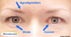 Alternative health techniques like iridology show that your eyes can give a glimpse of the state of your overall health. http://articles.mercola.com/sites/articles/archive/2011/03/01/14-things-your-eyes-say-about-your-health.aspx