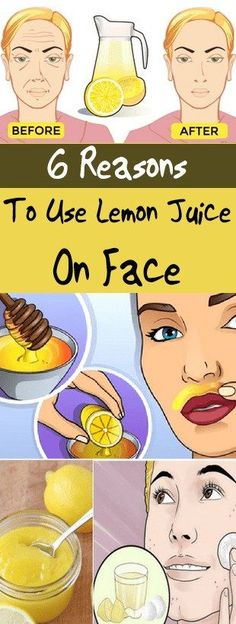 6 Reasons To Use Lemon Juice On Face #juice #face #beauty #health #fitness