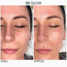 8 Best Wrinkle Relaxing Injections images in 2013 | Botox
