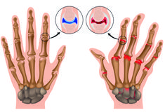 Home Remedies for Arthritis in Hand. How to Get Rid of Arthritis in Hand? Cure Arthritis in Hand Fast. Treat Arthritis in Hand. Rheumatische Arthritis, Home Remedies For Arthritis, Reactive Arthritis, Juvenile Arthritis, Rheumatoid Arthritis Treatment, Types Of Arthritis, Arthritis Gloves, Gout Remedies, Arthritis Exercises