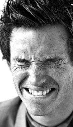 Eddie Redmayne: freckles