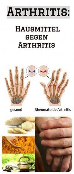Rheumatoide Arthritis natürlich behandeln