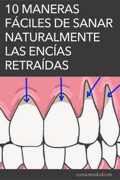 La recesión de las encías es el término médico que describe cuando el margen del tejido de las encías que rodea al diente se retira, exponiendo más del diente o su raíz. Las encías que se retraen pueden producir huecos notables, lo que facilita la acumulación de bacterias causantes de enfermedades. Si no se trata, el tejido de soporte y las estructuras óseas de los dientes pueden resultar gravemente dañados y, en última instancia, pueden provocar la pérdida del diente. El retroceso de las… Health And Beauty, Health And Wellness, Health Fitness, Body Hacks, Dental Health, Natural Medicine, Health Remedies, Dentistry, Excercise