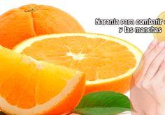 Naranja para combatir el acné  y las manchas