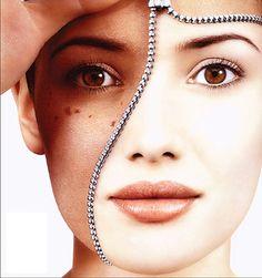 Những điều bạn cần biết về bệnh nám da và những cách điều trị nám - http://greenbiotech.com.vn/nhung-dieu-ban-can-biet-ve-benh-nam-da-va-nhung-cach-dieu-tri-nam/