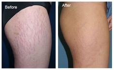 Once you start to see them on your body, you might wonder how to get rid of stretch marks quickly. Stretch marks form whenever skin becomes stretched. Medically, once a stretch mark forms, it is th. Beauty Care, Diy Beauty, Beauty Hacks, Beauty Makeup, Stretch Mark Cream, Stretch Marks, Body Foundation, Stretch Mark Removal, Summer Skin