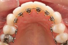 Invisible orthodontics is one that where the brackets go through the inside of the teeth . Dental Humor, Dental Hygiene, Dental Care, Braces Smile, Teeth Braces, Top Dental, Dental Braces, Lingual Braces, Braces Cost