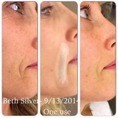 After only ONE use!! #AcuteCare  #RodanandFields #PrescriptionBased #ProactivDoctors #BeforeandAfter  sarahkwheeler.myrandf.com