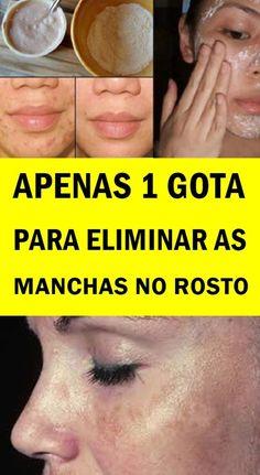 tirar manchas do rosto caseiro - Mistura para acabar com manchas na pele agora Dory, Face, Remover, Continue, Natural, Pasta, Pimples On Face, Dark Patches On Face, Dark Patches On Skin