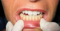 add to your dental discipline, brushing your pearly whites with some sea salt and/or baking soda is a safe and natural way to ensure strong teeth and gums, break down plaque buildup, and [. Healthy Soda, Healthy Teeth, Oral Health, Dental Health, Dental Hygiene, Natural Cures, Natural Health, Rheumatische Arthritis, Healthy Holistic Living