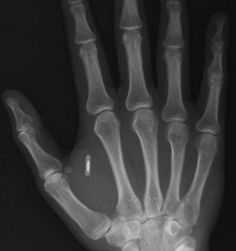 X-Ray of a hand with a microchip in place.