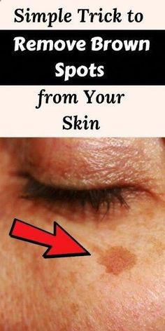 Trick to Remove Brown Spots from Your Skin - Remove age spots -Simple Trick to Remove Brown Spots from Your Skin - Remove age spots - Health Tips For Women, Health Advice, Beauty Care, Beauty Hacks, Beauty Tips, Diy Beauty, Beauty Ideas, Beauty Secrets, Beauty Skin