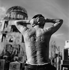 The scars of a Japanese man injured during the atomic bombing of Hiroshima.  Hiroshima, Japan - 1951  (Photo by Werner Bischof)