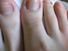 Go to this blog and see a beautiful real body.  Day 19.  Guess what? I have hairy toes. That may not come as a shock, seeing as I also have hairy legs, but when I was younger I honestly di...