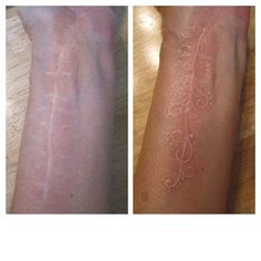 White tattoo over surgery scar: