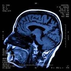 Brain's visual system also processes sound - Medical News Today Now I finally understand why I must turn the radio off when I am searching for a street sign in an unfamiliar  neighborhood.