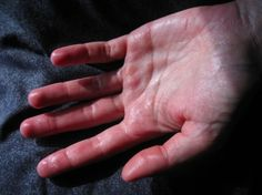 L'astuce naturelle pour ne plus jamais avoir les mains moites ! noté 5 - 1 vote Les émotifs sont souvent pris au piège d'un cercle vicieux: les symptômes de leurs émotions les troublent et les empêchent de retrouver une certaine décontraction nécessaire pour aller de l'avant. Si vous souffrez d'avoir des mains moites, voici comment …