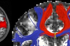 A functional MRI (fMRI), seen at left, can identify regions where blood flow increases in the brain during particular cognitive tasks. A diffusion MRI, seen at right, can identify the white matter that carries information between regions of the brain.