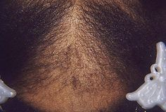 9 Best Traction Alopecia Images Hair Restoration Hair