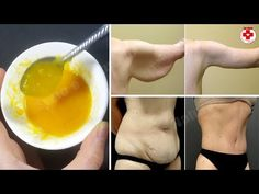 Remove Loose Skin and Sagging (legs, arms and belly) With This Natural Remedies - HEALTH Natural Acne Remedies, Homemade Cosmetics, Loose Skin, Sagging Skin, Smoothie Drinks, Face Skin, Healthy Treats, Lose Belly Fat, How To Lose Weight Fast